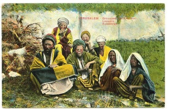 מצורעים בירושלים